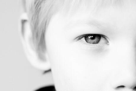 oog merijn (1 van 1)