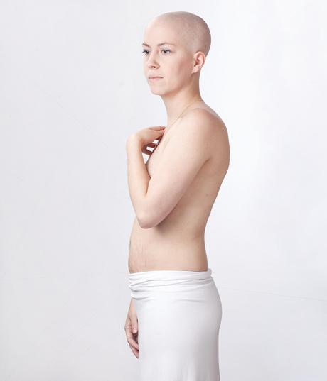 beat cancer!