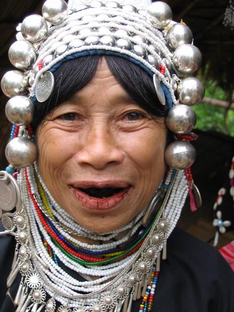 Zwarte tanden vrouwtje