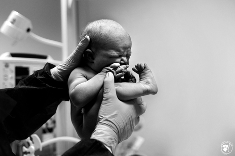 De foetushouding