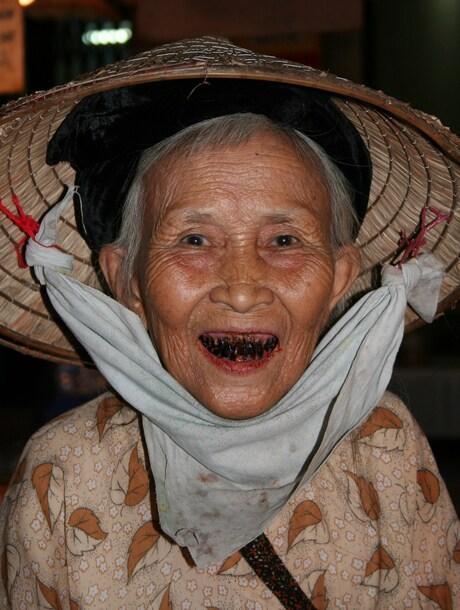 Donker zijn haar tanden...