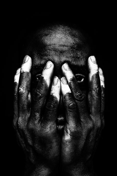 Show my Vitiligo